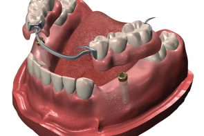 Partial Dentures | Benoit Viau Denturologiste