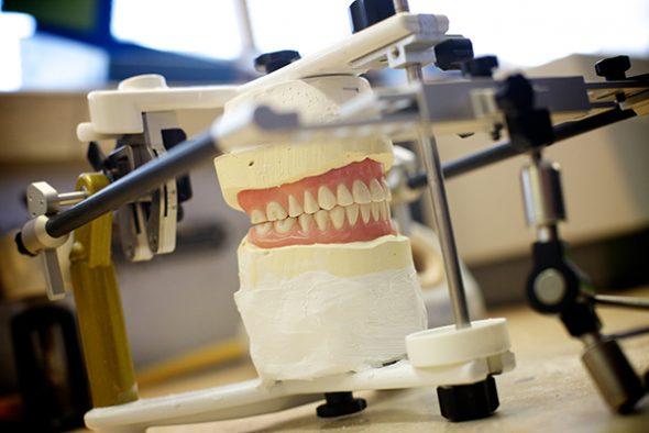 Prothèse-dentaire-de-précision